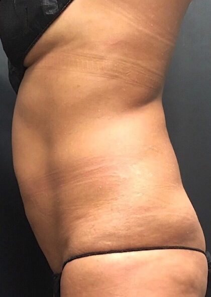CoolSculpting Before & After Patient #669