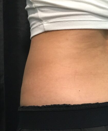 CoolSculpting Before & After Patient #680