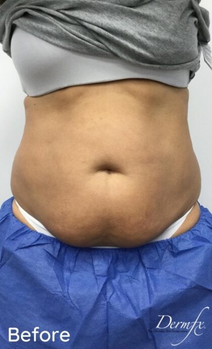 CoolSculpting Before & After Patient #686