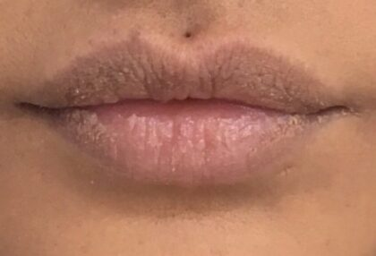 Lip Injections Before & After Patient #453