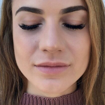 Juvederm Before & After Patient #459