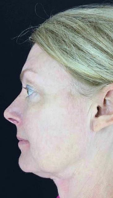 Ultherapy Before & After Patient #907