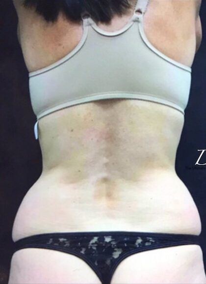 CoolSculpting Before & After Patient #407