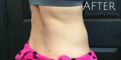 CoolSculpting Before & After Patient #413