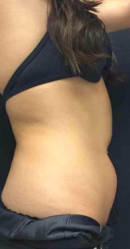 CoolSculpting Before & After Patient #420