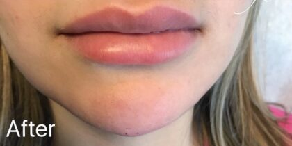 Lip Injections Before & After Patient #486