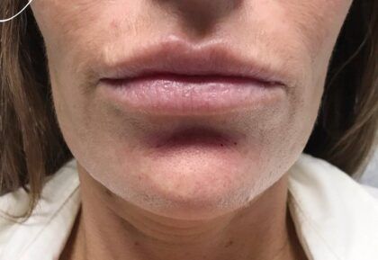 Restylane Before & After Patient #494