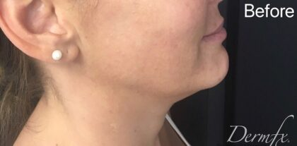 Ultherapy Before & After Patient #910