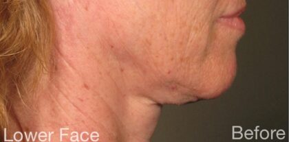 Ultherapy Before & After Patient #915